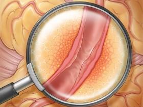 检测冠状动脉炎的新方法可以防止心脏病发作吗?