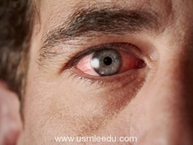 日常眼球运动可能是正常眼压患者发生青光眼的原因